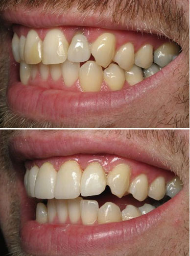 paso robles dentist
