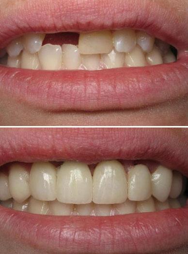 dentist paso robles, CA